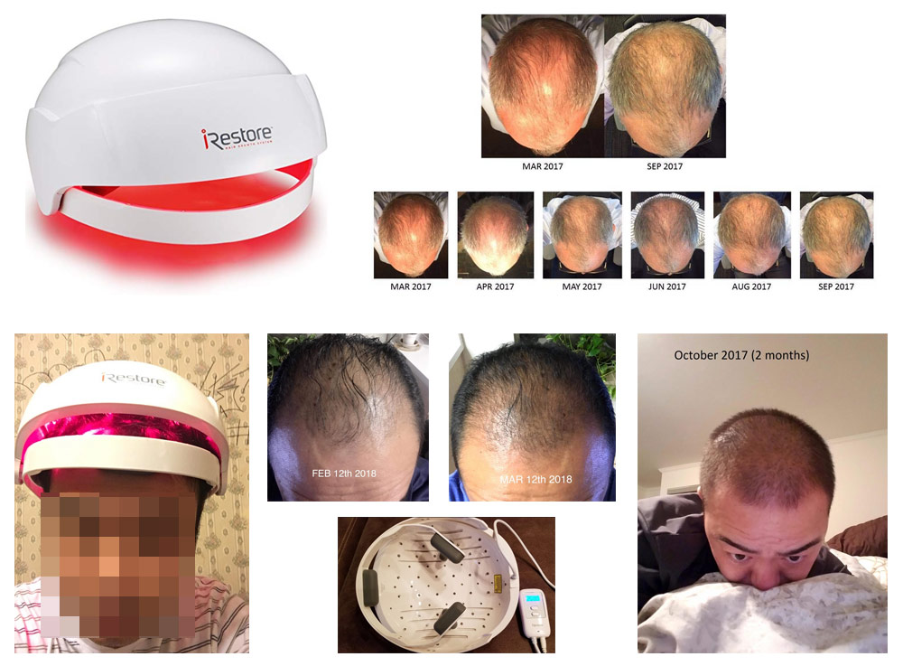 7 Best Laser Light Therapy Hair Growth Helmets Fda Cleared
